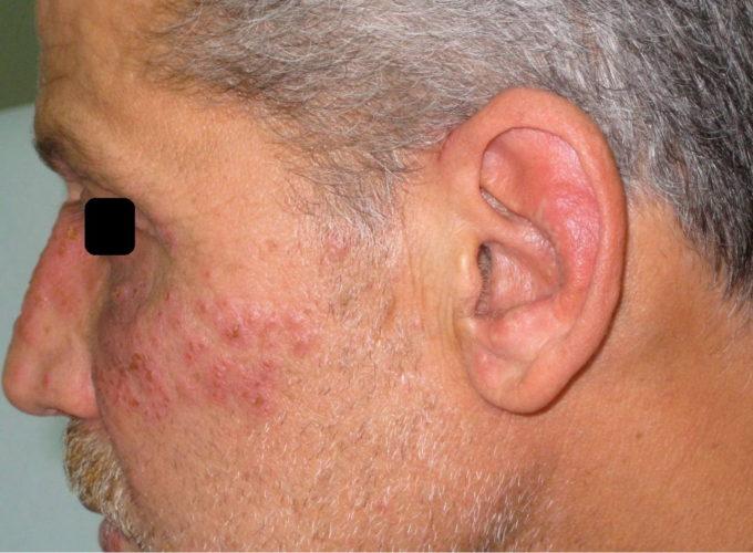 Herpes genital bölgesi: nedenleri ve tedavisi